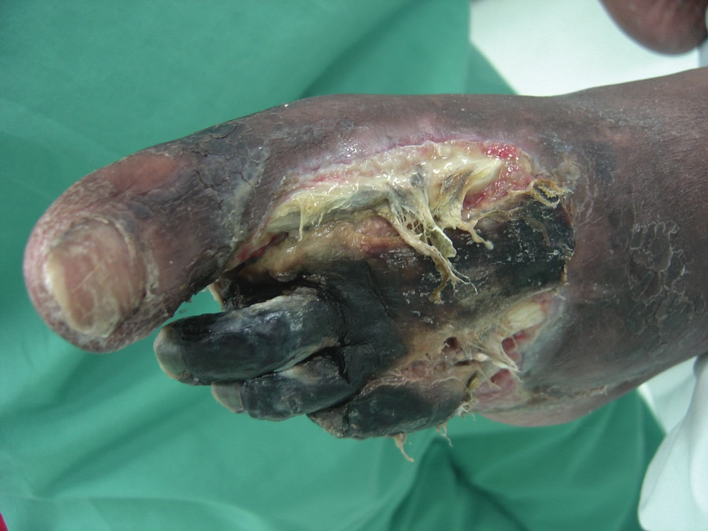 How To Choose Appropriate Antibiotics For Diabetic Foot Infections