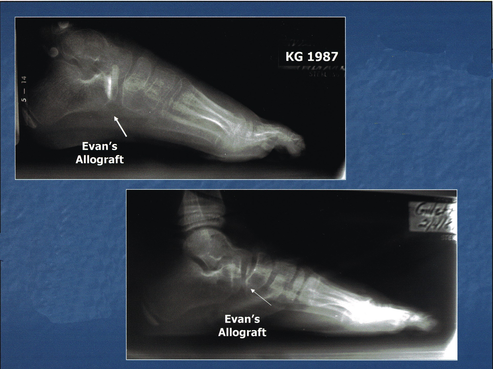 Here are three-month (top) and seven-month (bottom) post-op views of an Evans calcaneal osteotomy with freeze-dried allograft. Note the rapid incorporation of the Evans osteotomy and allograft with creeping substitution.