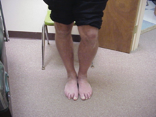 Although this patient's limb length discrepancy is obvious, the author says the discrepancy is best measured with radiographic imaging. (Photo courtesy of David Levine, DPM, CPed)