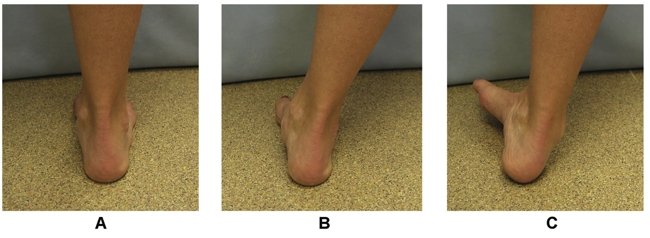 Chronic Ankle Instability: Can