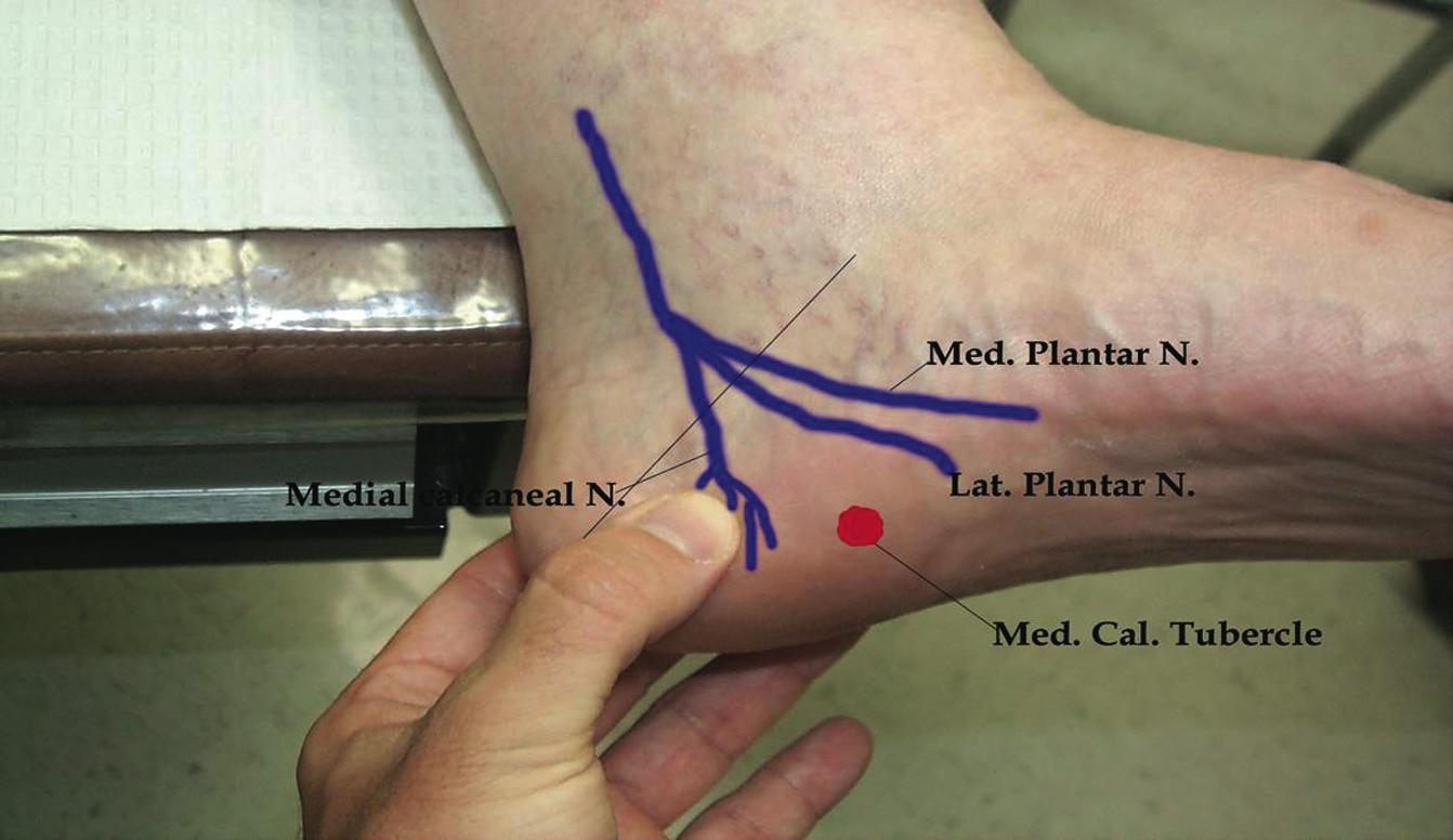 Neurogenic Etiologies Of Heel Pain