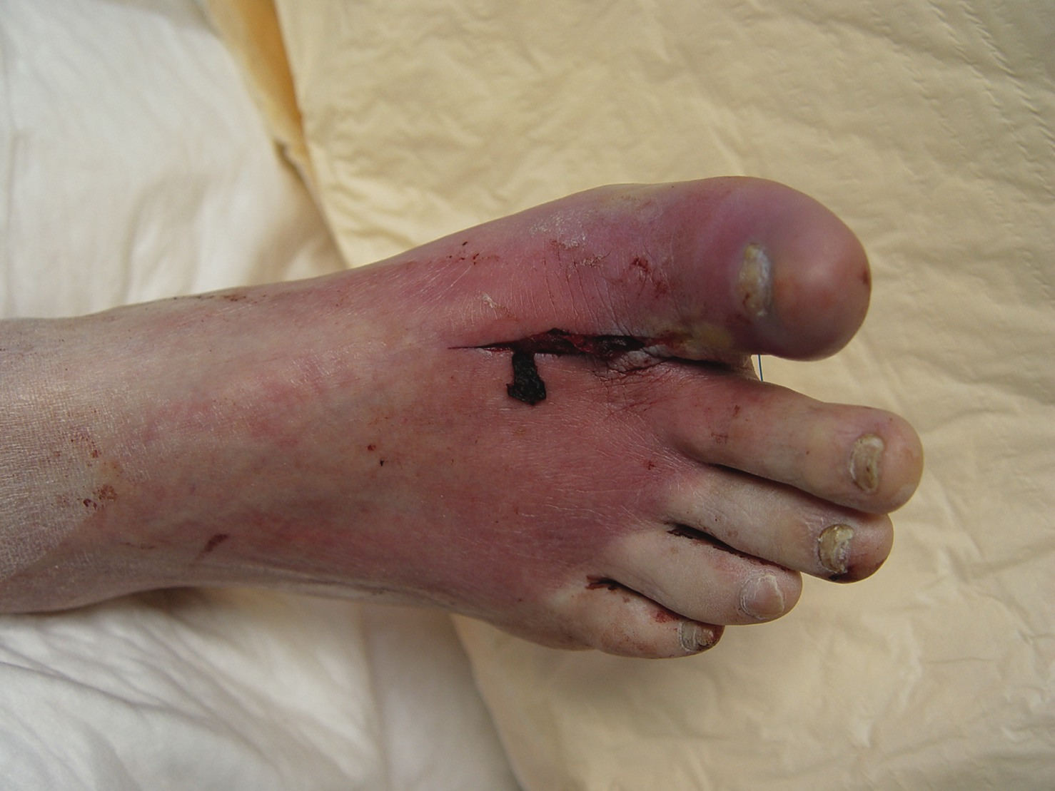A Guide To Emerging Antibiotics For Diabetic Foot Infections