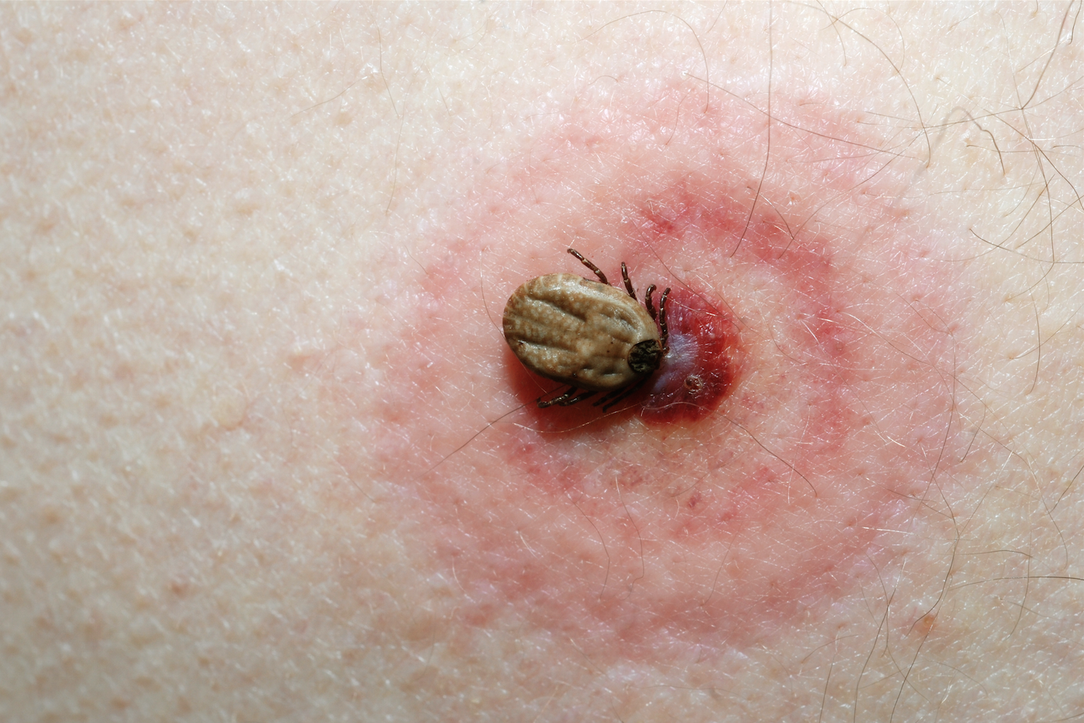 Remarkable Diagnosing And Treating Insect Bites And Stings On The Lower Uwap Interior Chair Design Uwaporg