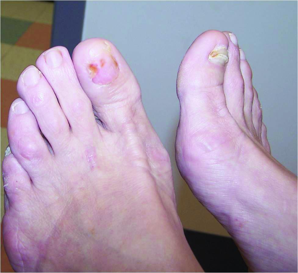 How To Detect Nail Unit Tumors Podiatry Today