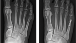 On the left is preoperative imaging of a tailor's bunion and bursitis that had been causing the patient significant pain. The authors implemented a postoperative pain management protocol including acetaminophen for five days and ibuprofen for three days with as needed hydroxyzine and oxycodone. At six weeks post-op (right), the patient had healed both her incision and osteotomy without complication and transitioned to pain-free weightbearing in her regular shoe gear.