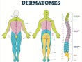 Figure 1. Armed with an understanding of how nerves transmit and receive signals from the dermatome to the spine, it is easy to see how blocking pain transmission at the appropriate dermatome will provide your patient much-needed pain relief.