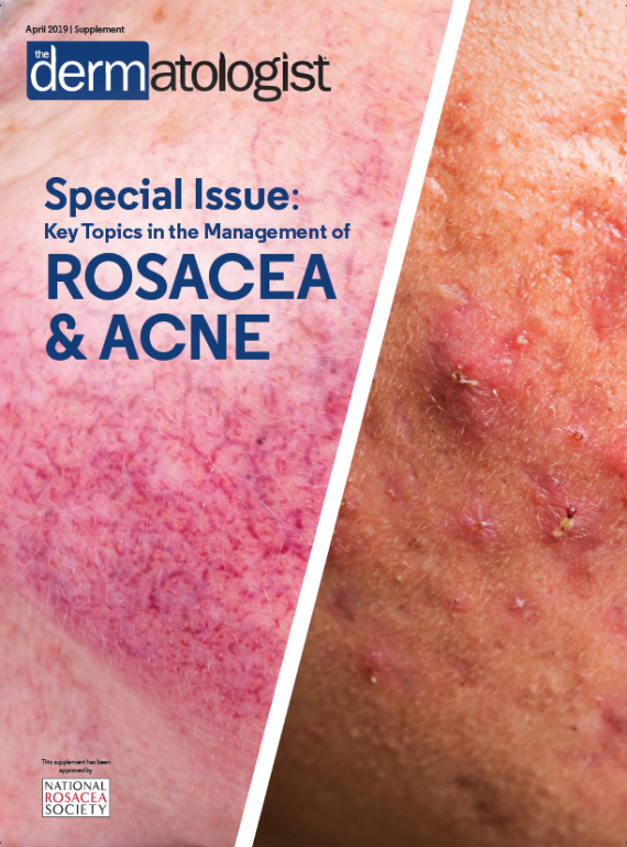 rosacea cover