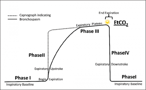 Capnography as a Clinical Tool | EMS World