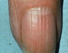 nail with ridges