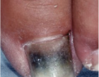 Pseudomonas infection nail