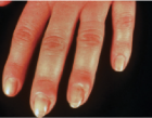 Fingers with nontender swelling of the proximal and lateral nail fold