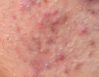 acne in a patient
