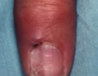 A myxoid cyst on the digit