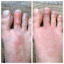 Here one can see photos of the foot of the patient in question upon presentation to the ER for symptoms of COVID-19 (left) and a few days later (right).