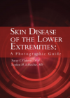 Skin Diseases of the Lowe Extremities: A Photographic Guide