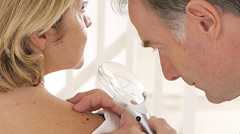 Skin Cancer The Dermatologist