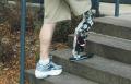 robotic leg transplant