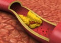 Clogged artery low angled view shown with a cut out section displaying fat deposits and a formed clot. High quality rendering with original hand painted textures and global illumination with great detail.