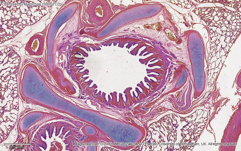 bronchi histology labeled google search res tract - 800×500