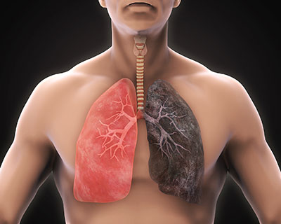 COPD Imagery