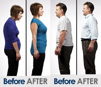 True-Alignment_rolfing_before_after