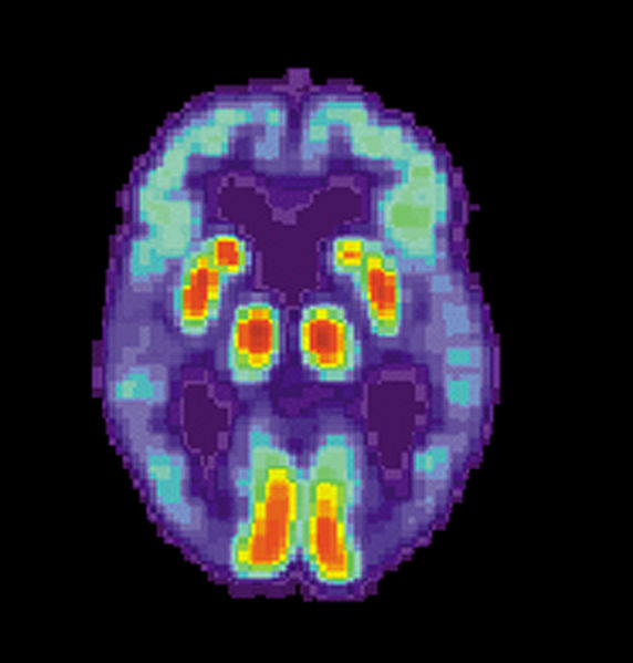 Alzheimer's Treatment Prevents and Improves Neurological Damage on Mouse Model