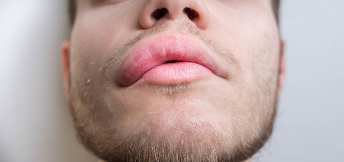 Oral Plasma Kallikrein Inhibitor Significantly Reduces Attacks of Hereditary Angioedema
