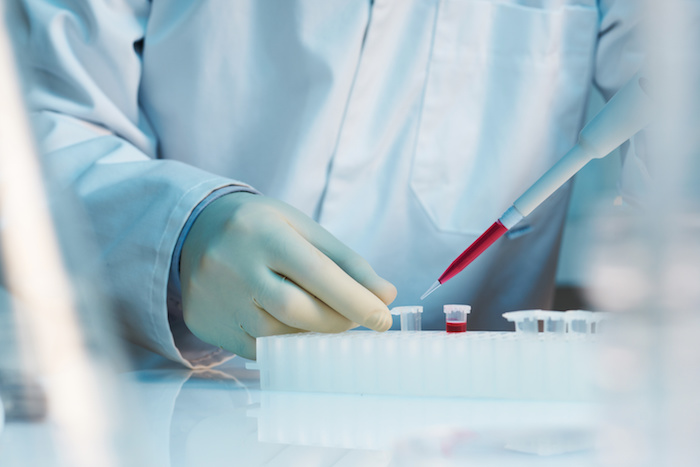 First Signs Of Huntington S Disease Detectable Via A New
