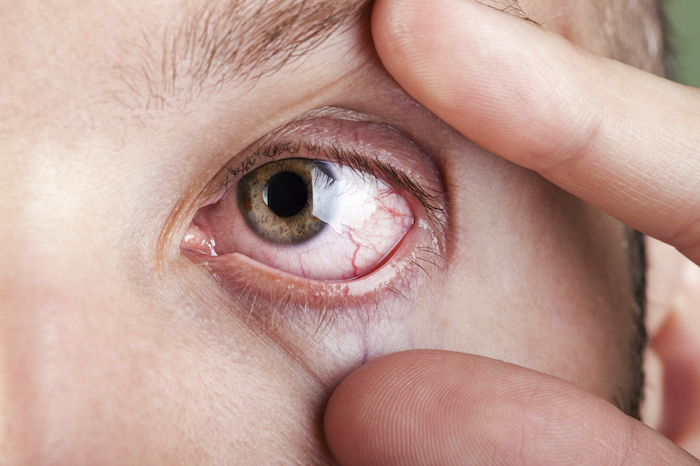 First Patient Enrolled in Pivotal Phase 3 Trial Exploring Treatment for Progressive Keratoconus