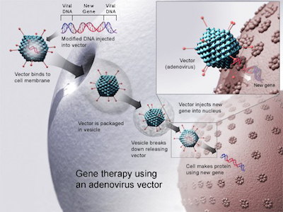 Gene Therapy for Fabry Disease Now a Reality