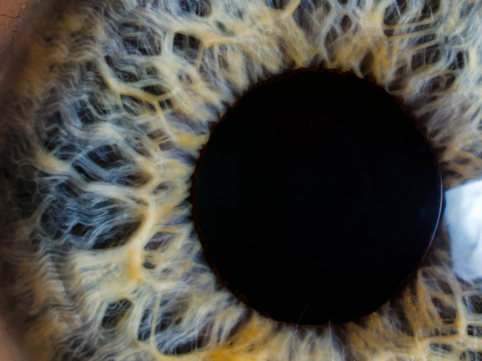 FDA Approves First Artificial Iris for Aniridia
