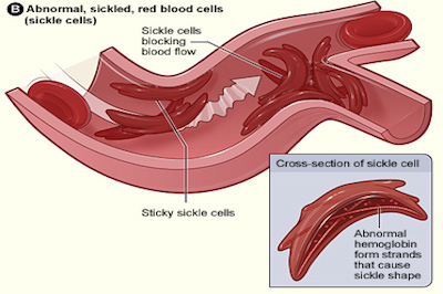 a clinical description of the genetic disorder disease sickle cell anemia Read medical definition of sickle cell disease when and how of sickle cell disease (sickle cell anemia) sickle cell disease: a genetic blood disorder caused.
