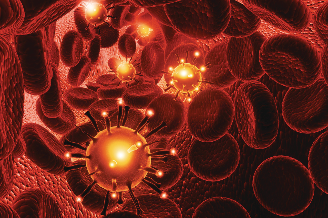 Hydroxyurea Therapy Found Effective for Myeloproliferative Neoplasms