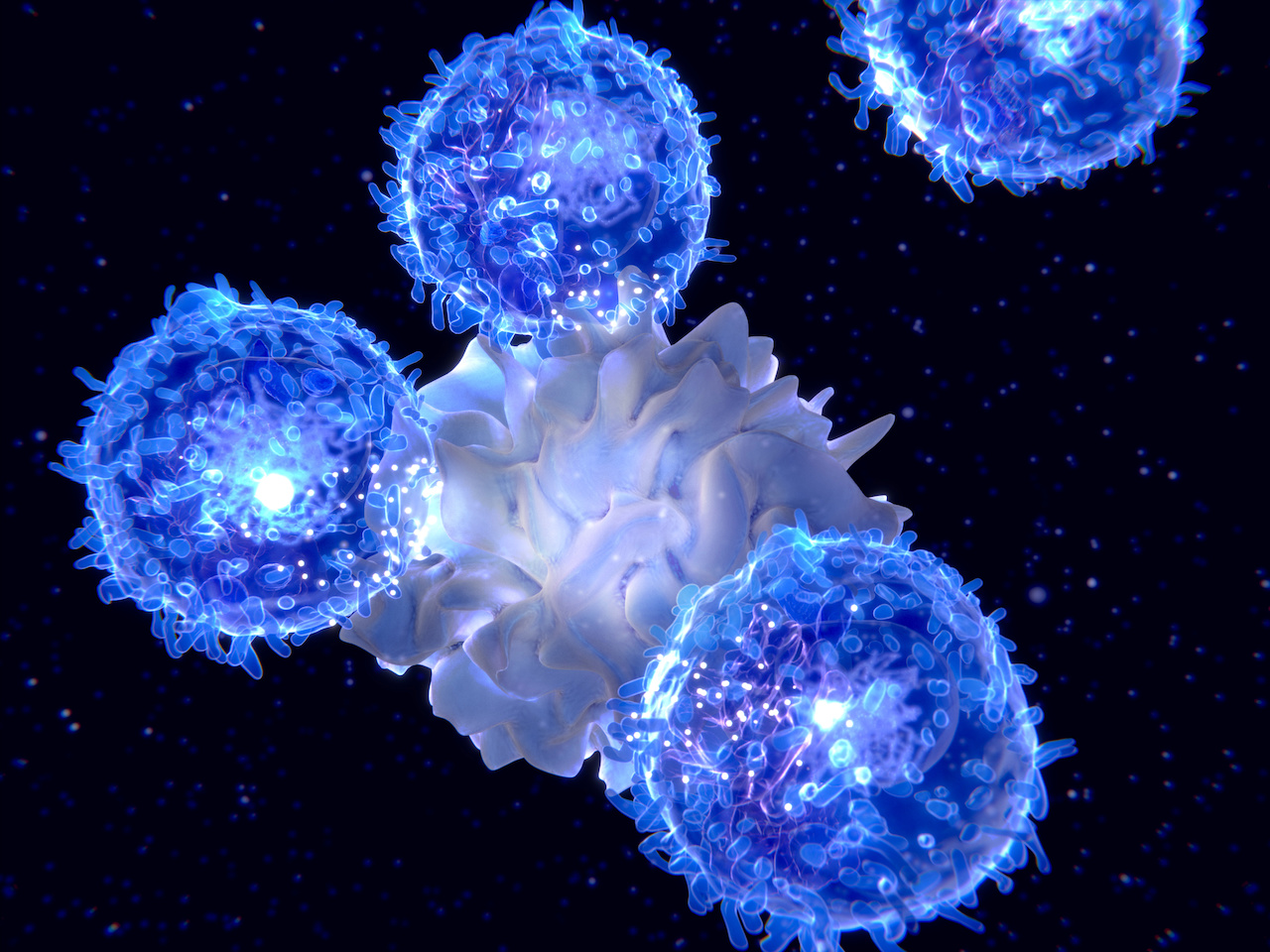 Ruxolitinib Therapy Benefits Patients with Chronic Neutrophilic Leukemia