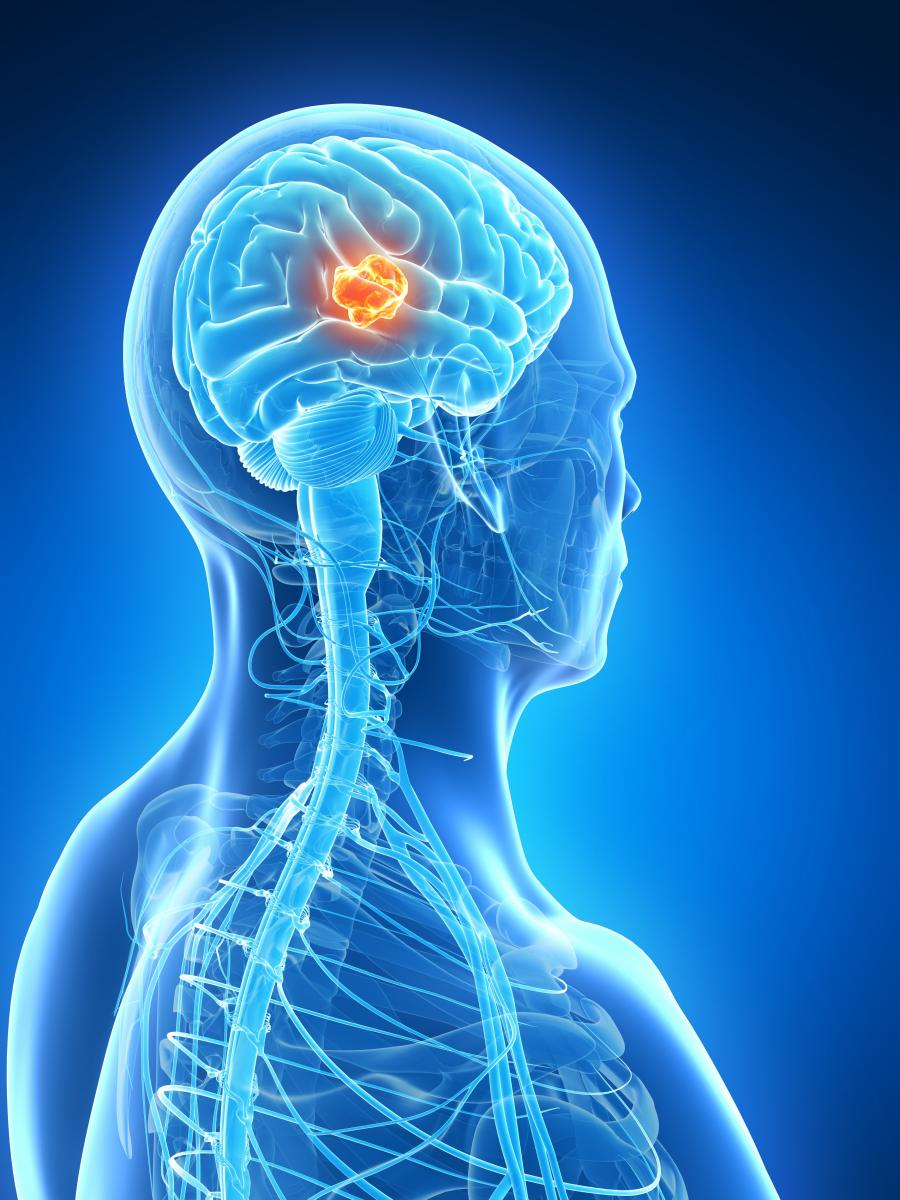 Genetic Testing Could Result in Life-Extending Treatment for Incurable Pediatric Brain Tumors