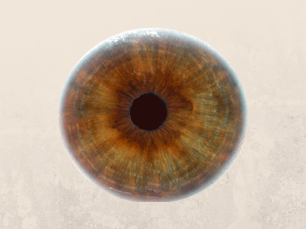 Low Doses of Cyclosporine A Do Not Prevent Second-Eye Involvement in LHON