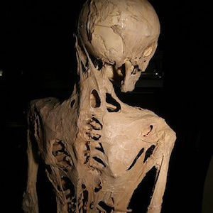Physician Recommendations for Managing Fibrodysplasia Ossificans Progressiva