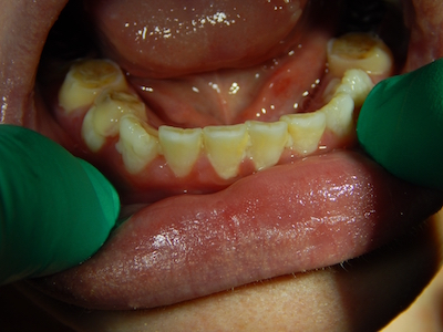 Hypophosphatasia and Dental Care
