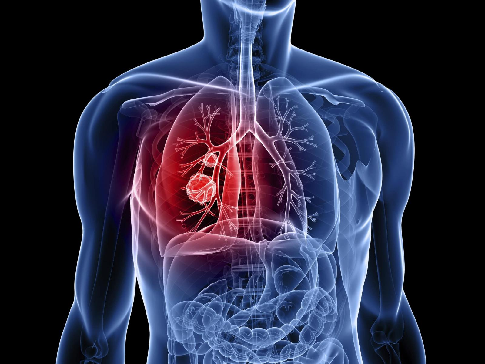 Orphan Drug Designation Granted to Small Cell Lung Cancer Treatment, ATI-1123