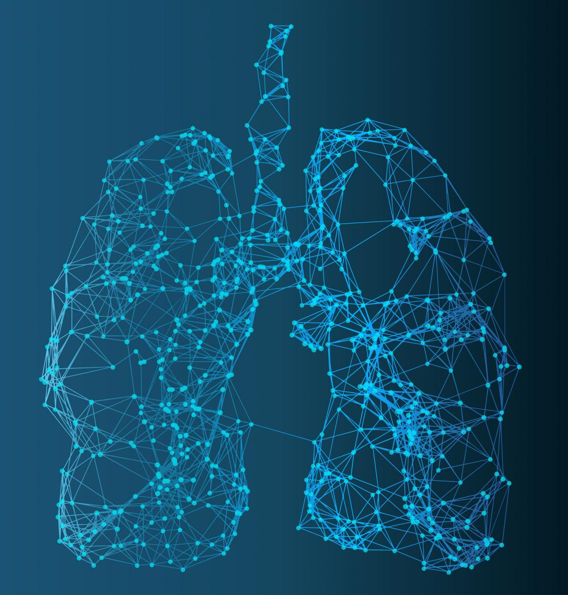 Molecular Source of Idiopathic Pulmonary Fibrosis Identified
