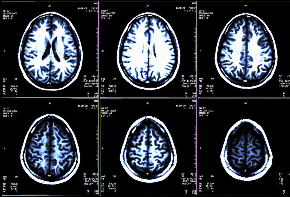 Uncertainty Remains Over Treating Multiple Sclerosis Symptoms with Medical Marijuana