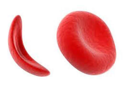 Potential Drug Therapy Target Identified for Sickle Cell Disease and Thalassemia
