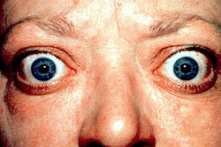 Phase 3 Study for Thyroid Eye Disease Begins