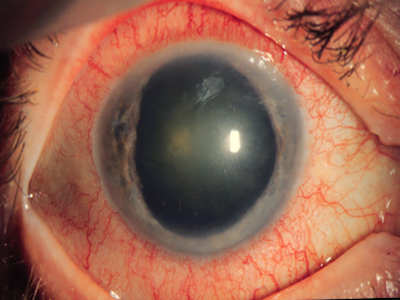 3 trials assessing the orphan drug opsiria 440 g sirolimus injection for the potential treatment of non fnfectious uveitis of the posterior segment