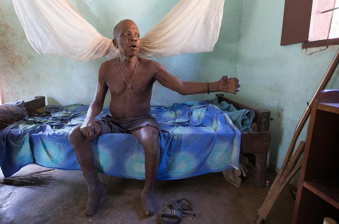 John Flomo, 66, has lived at the Ganta Leprosy and TB Rehab Center since he was 15 years old. The center is part of the United Methodist Ganta Mission Station in Ganta, Liberia. Photo by Mike DuBose, UMNS.