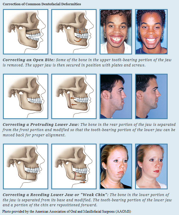 Surgical Orthodontics Flemington NJ | Cedarbaum Orthodontics