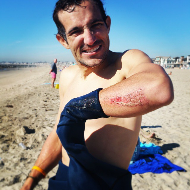 Roadrash and wetsuits dont mesh! #roadrashboardco #roadrash #lookslikeegg #newps #iguessitsclean #iateshit