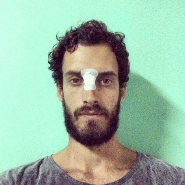 #surfaccidentshappen. Álvaro looking like an ex convict with a nosejob. #paezteam #Bali #weshare