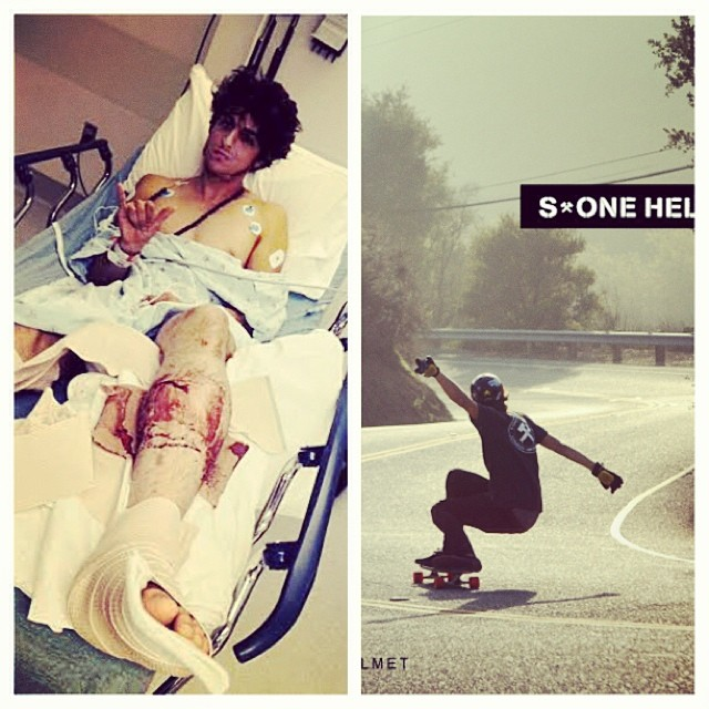 Just want to send out a big #healupfast to our friend and #teamrider #arichamasmamy. (Left) last week he broke his leg skating. Compound fracture. (Right) a skate photo of Ari from a better day.