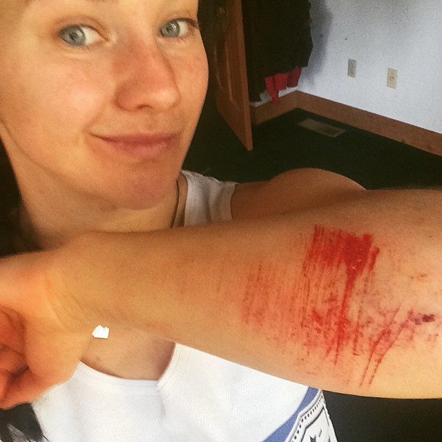 Ouch!!!! That's not what I wanted to do. OTB on the easiest part of the ride. Funny thing I didn't really care because the overall experience was freaking awesome! #mtnbike #laketahoe #specializedenduro #faceplant #dontforgetyourpads #lovelife @epicbar...